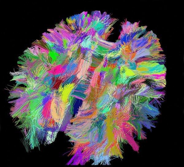 marquage multicolore d'un cortex de souris